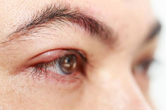 penyebab mata bengkak