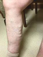 phlebitis in leg