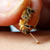 Behavioral Therapy of Bee Bees to Treat Rheumatism May Be Dangerous