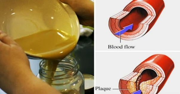 Clear Clogged Arteries and Eliminate Bad (LDL) Cholesterol From Your Bloodstream Using THIS 3 Ingredients Remedy