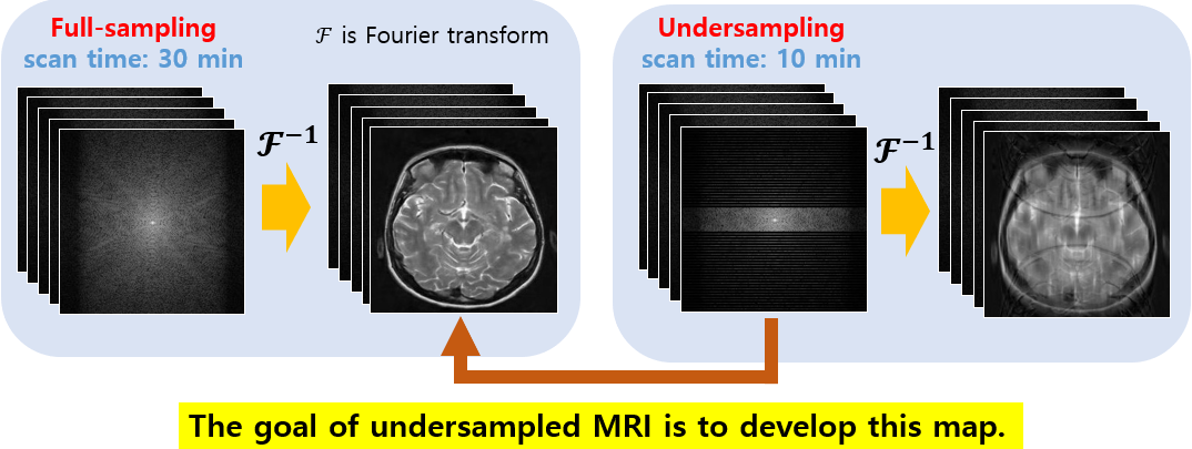 Hwa Pyung Kim: Deep learning for undersampled MRI reconstruction