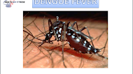 Dengue fever: Symptoms, Causes, Prevention and Treatment