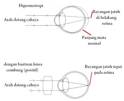 Pengertian, Patofisiologi, Etiologi, dan Pengobatan Kelainan Hipermetropi Pada Mata