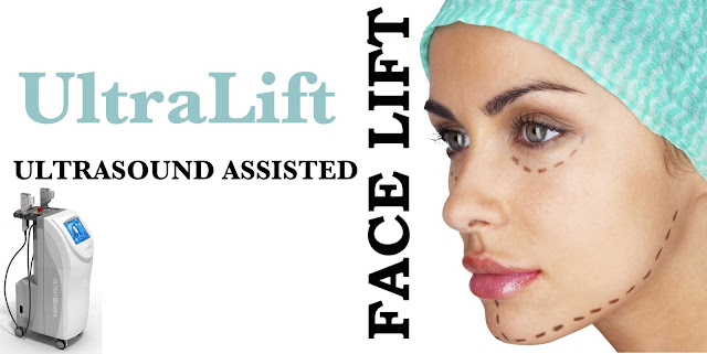 Ultralift, Ultrasound assisted facelift