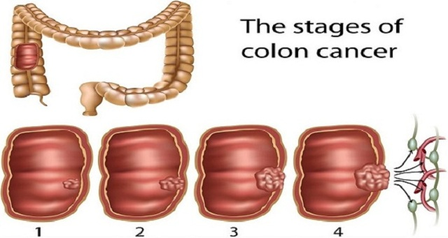 THE EARLY WARNING SIGNS OF COLON CANCER YOU SHOULD NEVER IGNORE AND HOW TO PREVENT IT