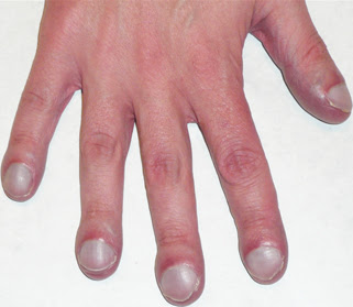 wherein mucus is secreted in several places in the body is aneh tough Cystic Fibrosis Symptoms, Causes and Treatment