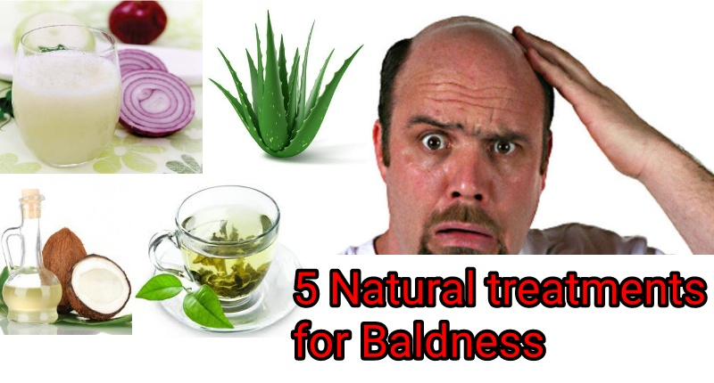 natural remedies for male baldness