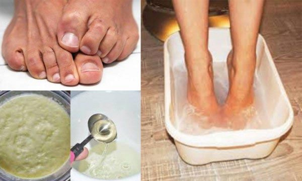 How to Get Rid of Stinky Feet Forever with Baking Soda, Vinegar and Ginger Puree