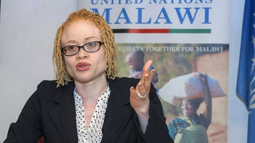 People With Albinism In Malawi Face 'Total Extinction' - UN