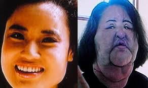 10 Worst Plastic Surgery Tragedies