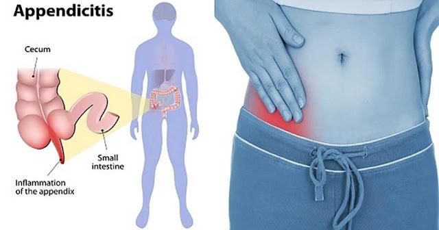 http://surgicalgastro.com/appendicitis/