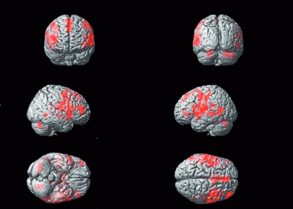図:ツボHT5の刺激で左右の言語野が活性化