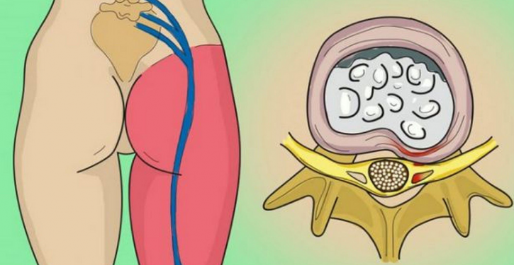 10-minute Treatment To Relieve Sciatic Nerve Pain