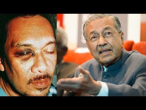 Image result for anwar ibrahim black eye