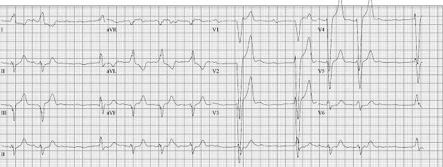 ECG Rhythms: Machine interpretation: atrial fibrillation