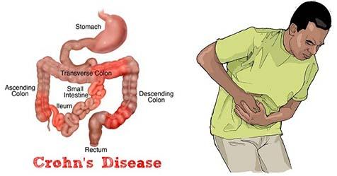 Crohn's Disease Causes