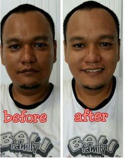 Cream Pemutih Wajah Yang Efektif Untuk Pria