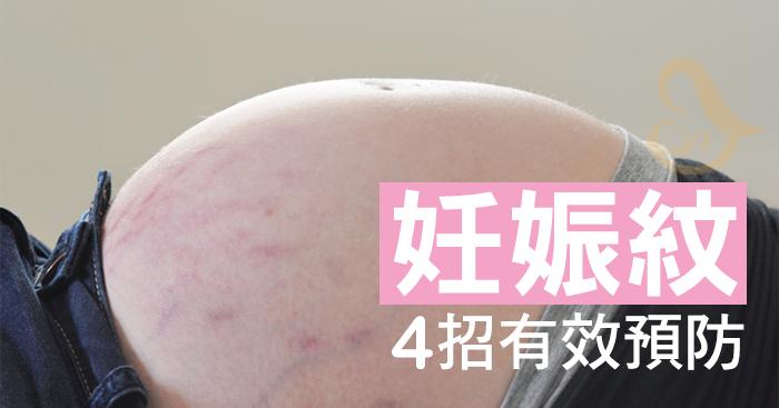 孕期如何預防妊娠紋?如何消除妊娠紋呢?