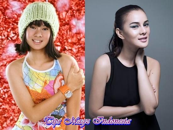 foto Astrid Tiar sebelum dan sesudah operasi plastik