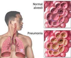 Cara mengobati paru paru bengkak hingga sembuh