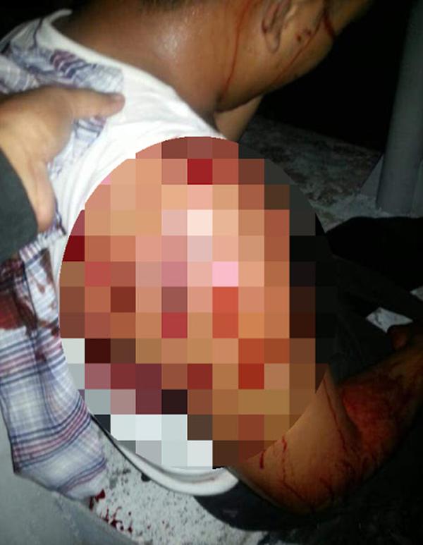(Gambar & Video) Kes Tembakan Di Sepang, Mangsa Yang Disangka 'Datuk' Parah Ditembak!