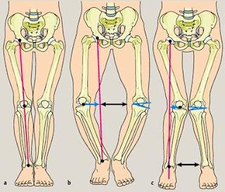 Berbagai Gangguan dan Kelainan Pada Tulang