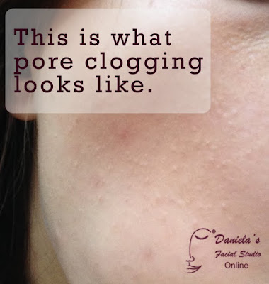This is what pore clogging looks like,