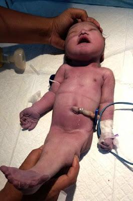 Geger Seorang Ibu Lahirkan Bayi Putri Duyung