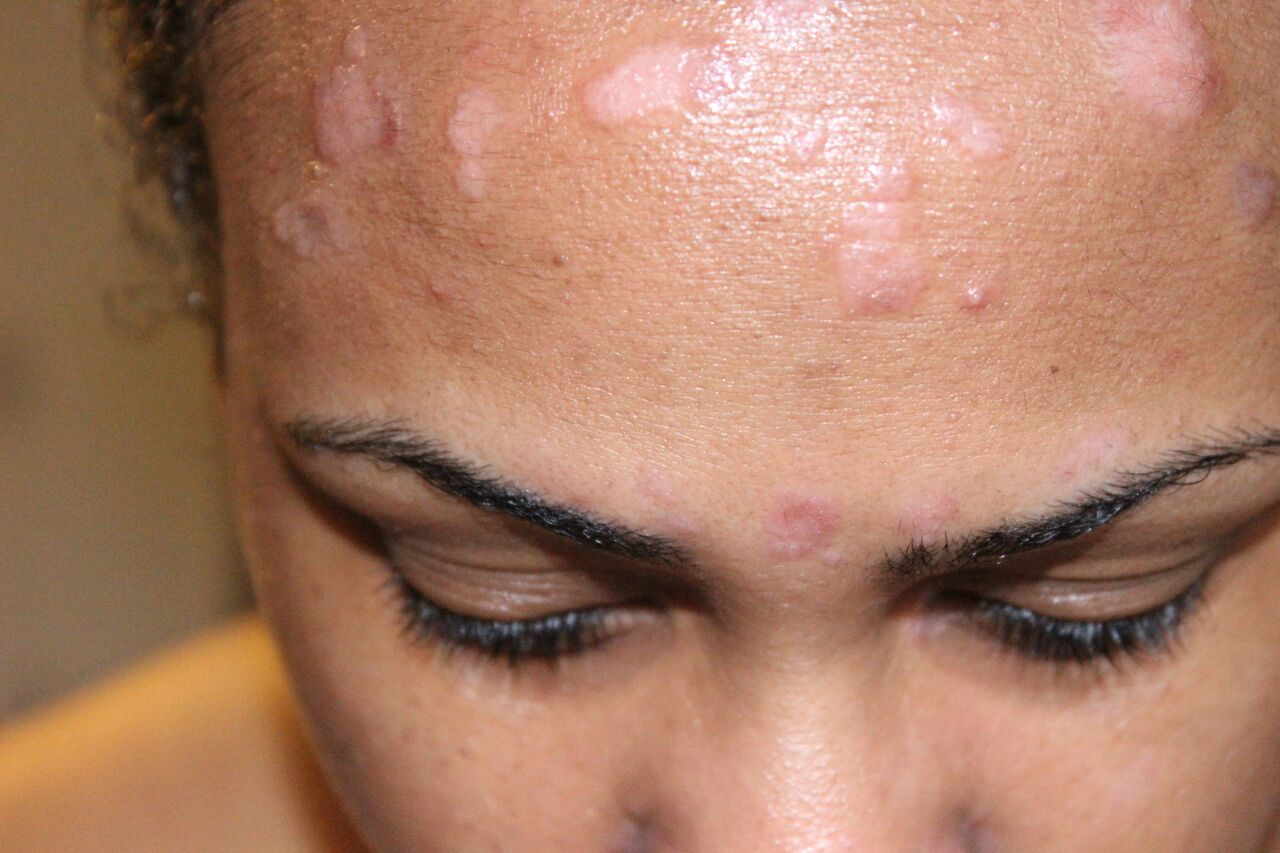 Mild Psoriasis Face