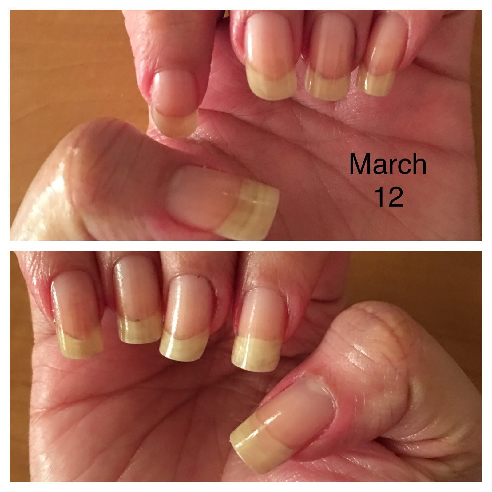 How to Save and Regrow Nails After a Break