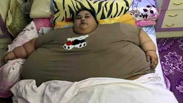 World's fattest woman | you will be shocked to know her weight!!