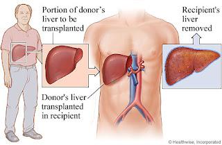 Tips Alami Untuk Mengobati Sirosis Hati Secara Efektif Tanpa Operasi