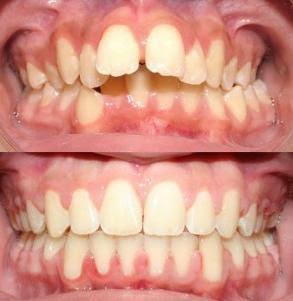 Niềng răng lệch lạc