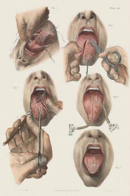 lifebuzz 316a512b454b5bbe3c1182c45c2e5499 limit 2000 - Os 10 tratamentos médicos mais bizarros da antiguidade