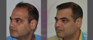 saç ekimi öncesi ve sonrası foto 12