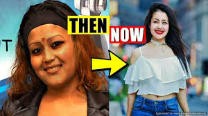Neha Kakkar Before and After