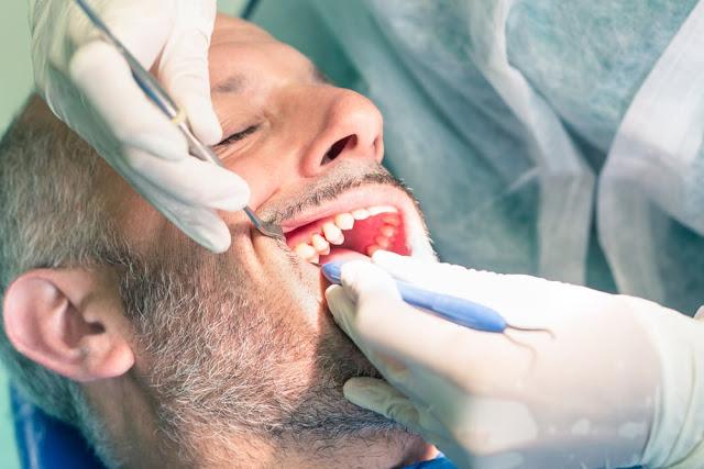 Manfaat Cabut Gigi yang Berlubang, Namun Anda Juga Harus Tau Efek Negatif Berikut