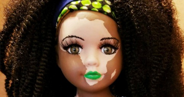 African American doll with vitiligo