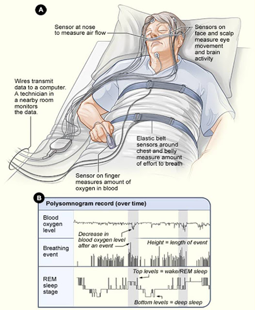 Diagnosing Obstructive Sleep Apnea - Is Monitoring Right Choice?