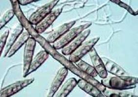 oxyuris vermicularis symptoms
