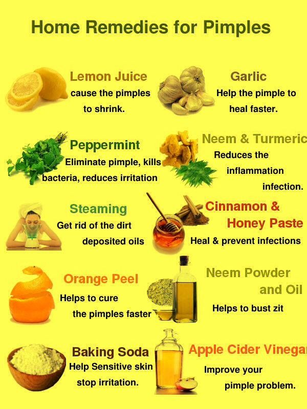 Acne Home Remedies, Pimple Treatment at Home, Home Remedies, Tips, Buety Tips, Skin Care,