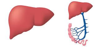 Plus de calculs biliaires dans la résistance à l'insuline