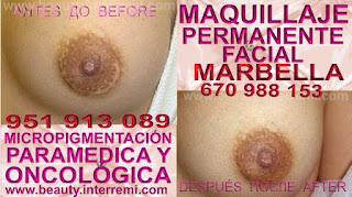 cicatrices reducción mamaria Camuflaje cicatrices mamaria después de cancer