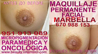 cicatrices reducción mamaria Rellenos cicatrices mamaria después de cancer