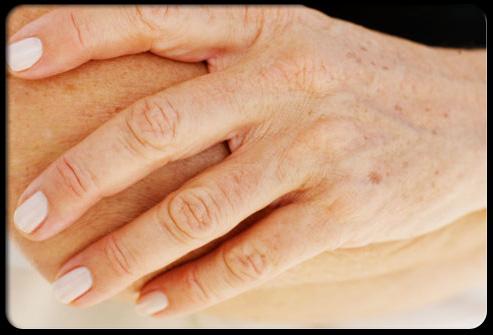 Adult Skin Problems 88
