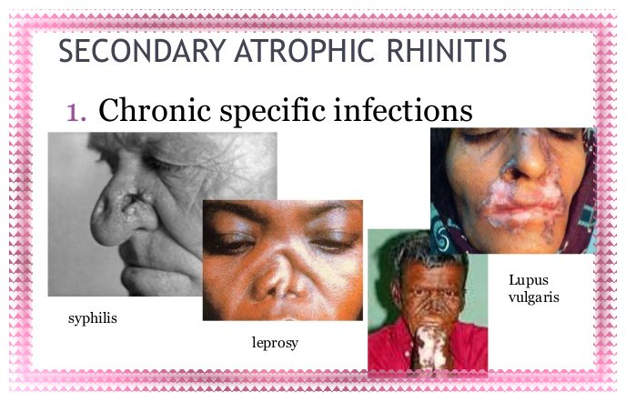 ATROPHIC RHINITIS And Its Effect
