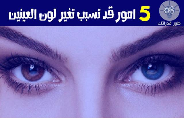5 امور قد تسبب تغير لون العينين
