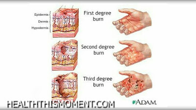 Home Treatment For Minor Burns