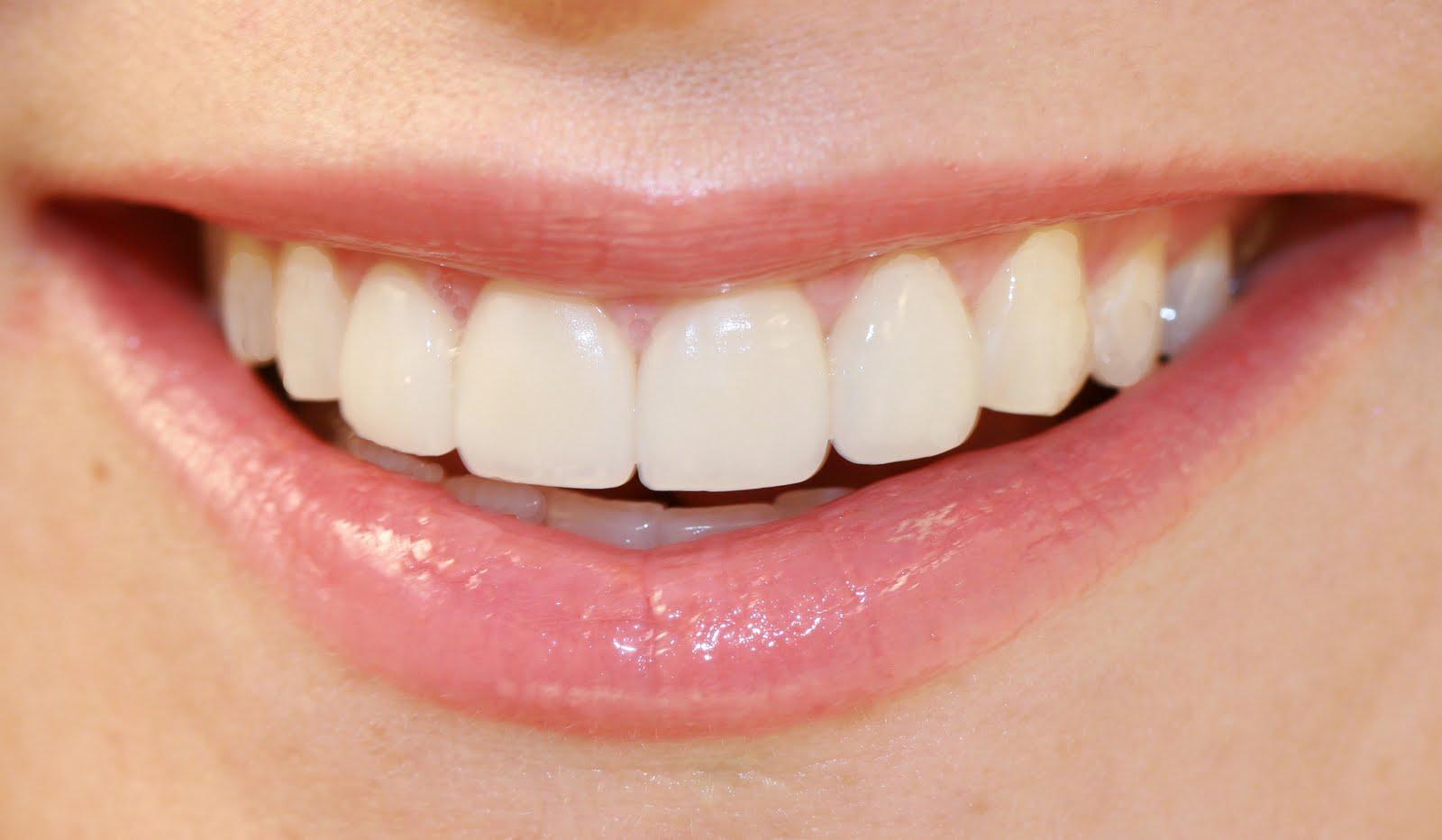 Wild Smiles by Dr. Kapus