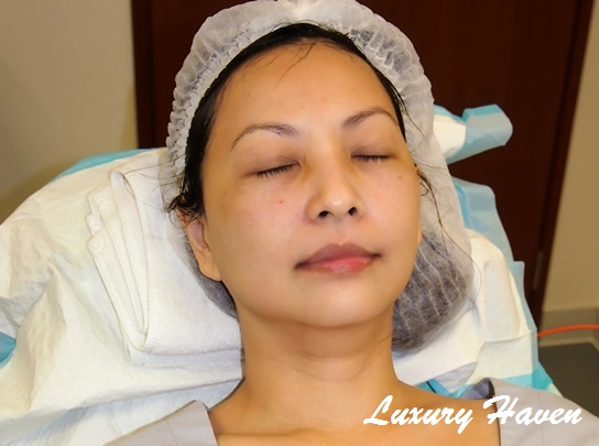 epw laser medical aesthetics clinic copper bromide melasma